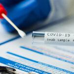 Cómo funcionan las pruebas moleculares para detectar el COVID-19