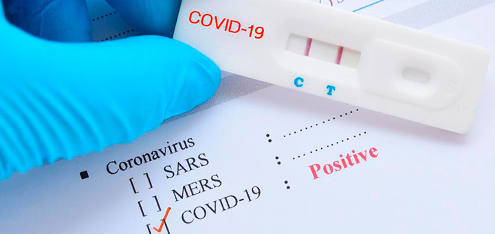 prueba rapida antigenos biolinks